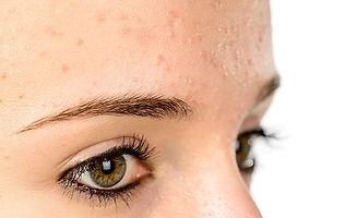 peeling contre l'acné