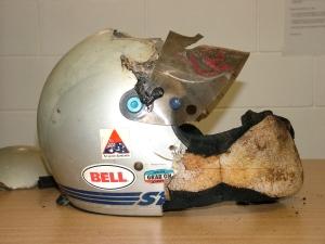 Basilar skull fracture study