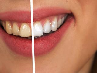 Schöne weiße Zähne stärken das Selbstbewusstsein...!