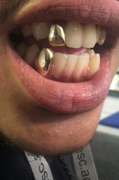 9k Yellow Gold Teeth