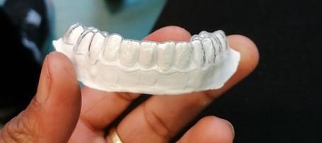 Orthodontic Essix Retainer