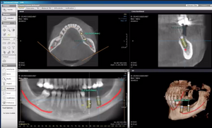 digitalna stomatologija, CDEI Beograd, savremena stomatologija, estetska stomatologija, implantologija