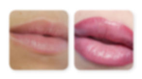 Lips-Before-and-After-2-1024x570.jpg