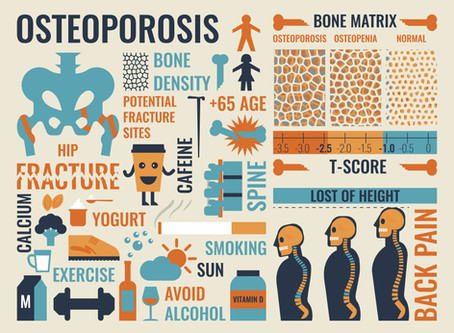 CBD Oil for Osteoporosis