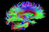 cerveau-fibres_edited.jpg