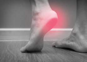 THE #1 BEST WAY TO ADDRESS PLANTAR FASCIITIS