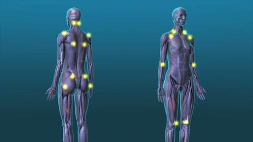 Медицински необъяснимые синдромы: синдром раздражённого кишечника, фибромиалгия, хрон. усталость