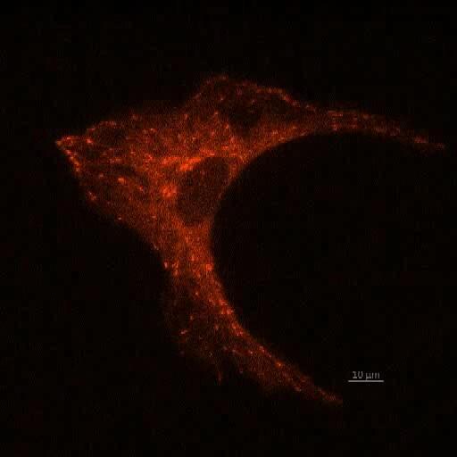 Time-lapse live-cell imaging - Ankita Patil