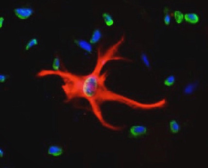 Astrocytes - Timmy Le.JPG