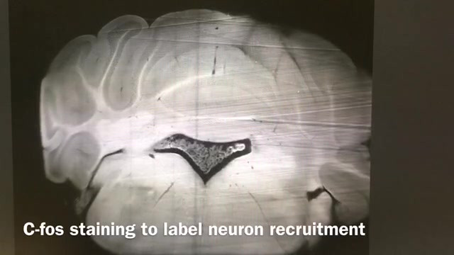 Caligiuri Stephanie - Brain Clearing