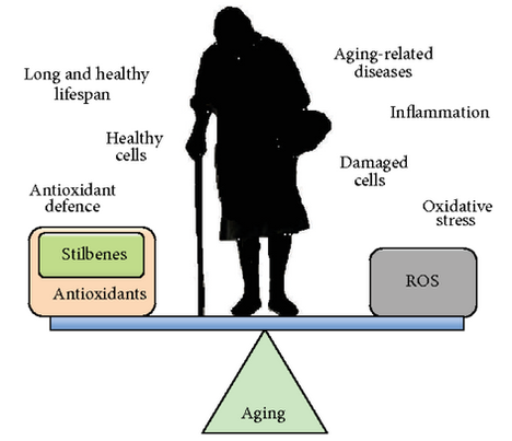 Alzheimer's disease - Dr. Nidhi Sharma