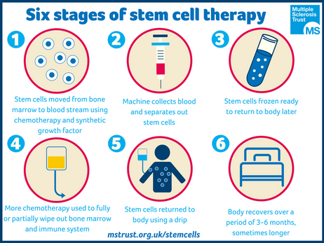 Stem Cell Therapy - Domenica Rivera