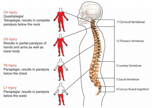 Spinal Cord Injury - Sanskriti Pawan