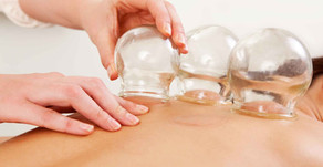 Chattanooga Massage: Cupping