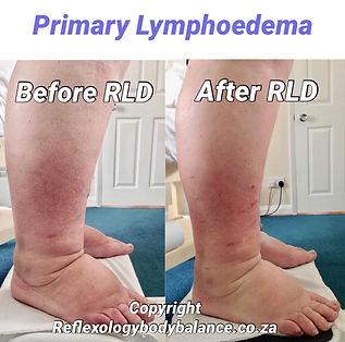 Primary Lymphoedema Side View.jpg
