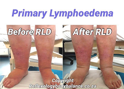 Primary Lymphoedema Front View.jpg