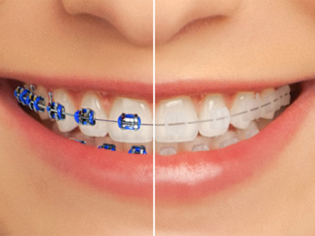 Clear Esthetic Adult Braces