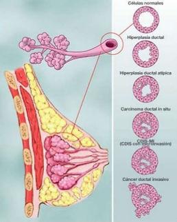 cancer de mama slp