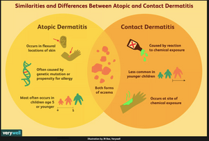 image of difference between atopic and contact dermatitis