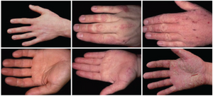 3 hands one with mild eczema, medium eczema and severe eczema
