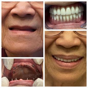 Anna implant denture.JPG