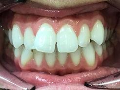 Teeth b4.JPG