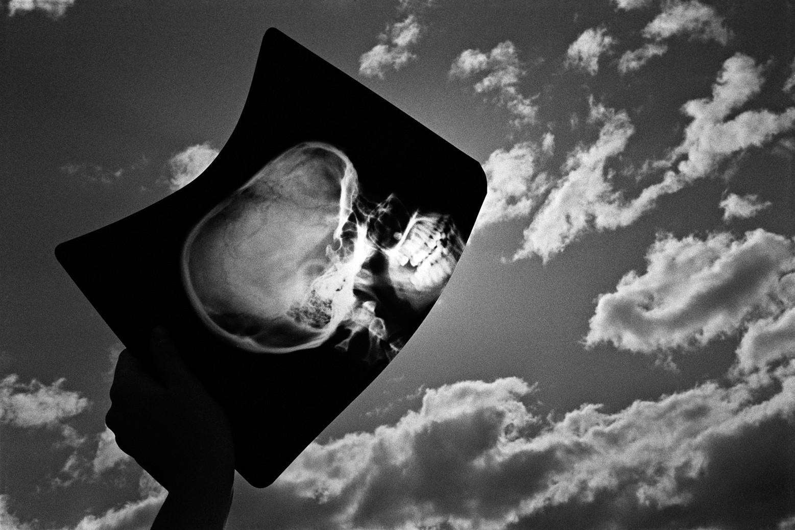 Radiografia ll
