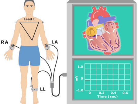 Things You Need to Know about the Cardiovascular Disease Monitoring and Diagnostic Devices Market