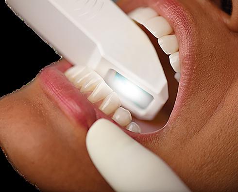 intraoral scanner in pimpri chinchwad pu