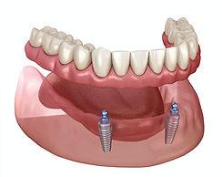 Implant dentures in pimpri chinchwad.jpg