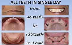 tooth implant cost in pune.jpg