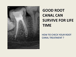 root canal dentist in pune.jpg