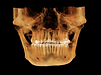 FULL MOUTH CBCT SCAN IN PIMPRI CHINCHWAD