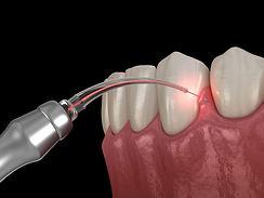 laser dental treatments in pimpri chinch