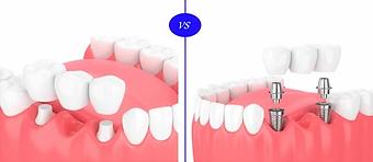 dental implant 4.webp