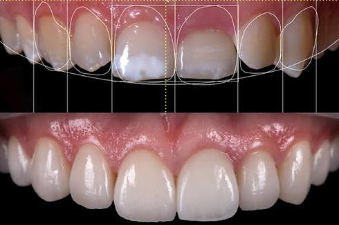 Smile design treatments in pimpri chinch