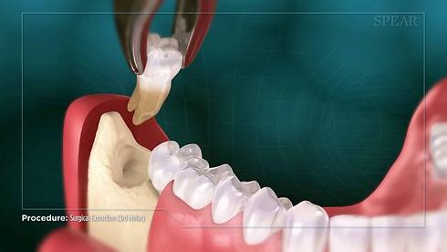 Burute Dental sURGERY in pimpri chinchwa