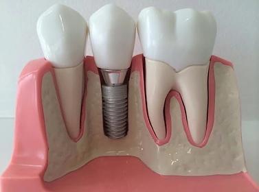 dental implant 1.webp