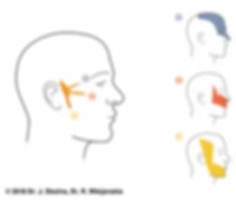 n. trigeminus inervācijas zonas - dermatomi