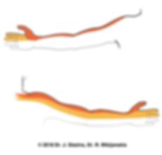 Sāpju izplatība atbilstoši dermatomiem kakla diska trūce