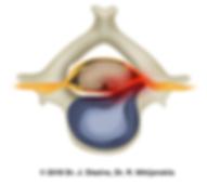 Грыжа диска со сдавлением нерва в шейном отделе позвоночника