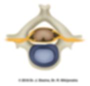 Здоровый межпозвоночный диск шейного отдела позвоночника
