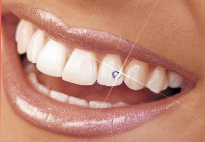 Cosmetic Tooth Gems