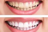 TeethWhteningImage.jpg