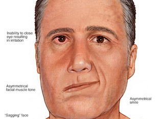 On Bell's Palsy