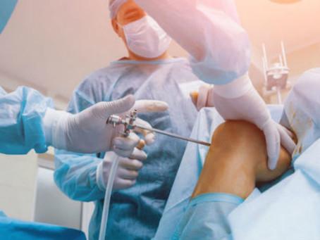Artroscopia: Tudo que você precisa saber