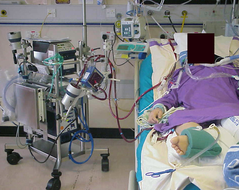 Extracorporeal-Membrane-Oxygenation-ECMO
