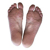 The plantar aponeurosis in elderly men w