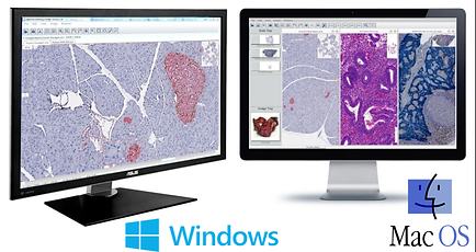 digital pathology viewer