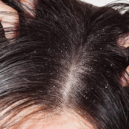 How to Get Rid of Dandruff Quick